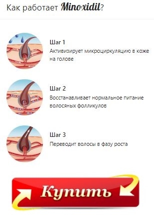 Minoxidil купить в Евпатории