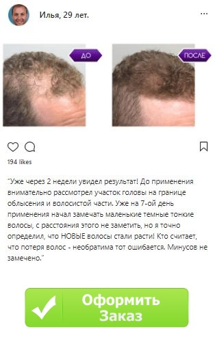 Народные средства против роста волос